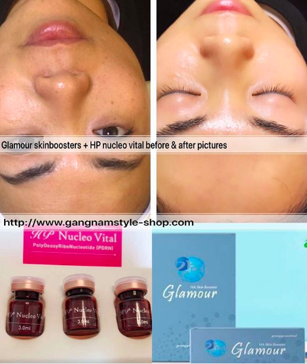 glamour skinboosters treatment before & after