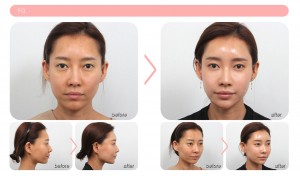 korean fat grafts before after