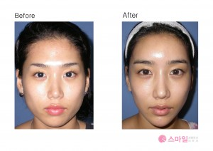 Korea fat transfer before & after