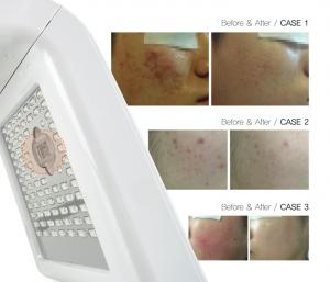 PDT光动力祛痘前后对比图
