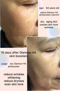 skin boosters before and after