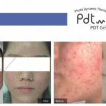 What is photodynamic therapy for acne?