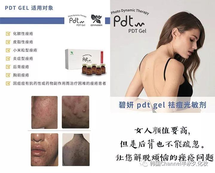 PDT焕肤光动力祛痘