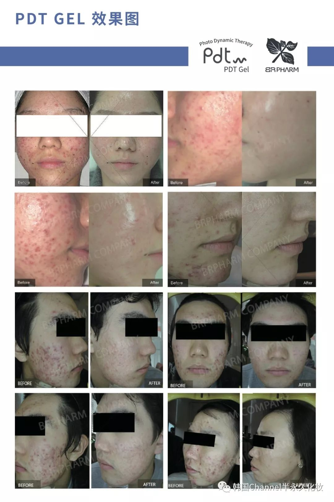 PDT焕肤光动力祛痘前后对比图