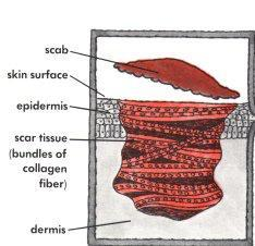 acne scar pdrn