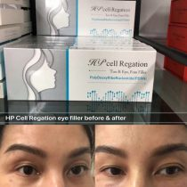 HP Cell regation eye filler, best treatment for dark circles, saggy eye bags & under Eye Hollows