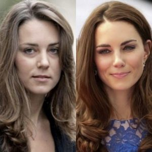 kate-before-after-under-eye-filler