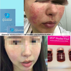 pdrn skin boosters injection before after pictures