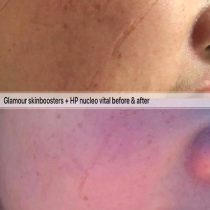 Laser is not the only acne scar removal method, try PDRN skin healer