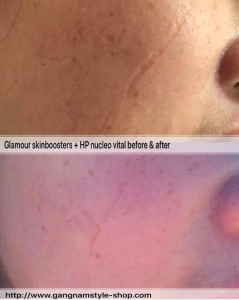 pdrn skinboosters treatment before after result