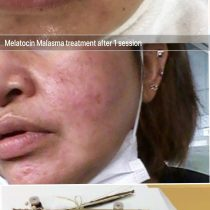 melasma treatment Melatocin Essence