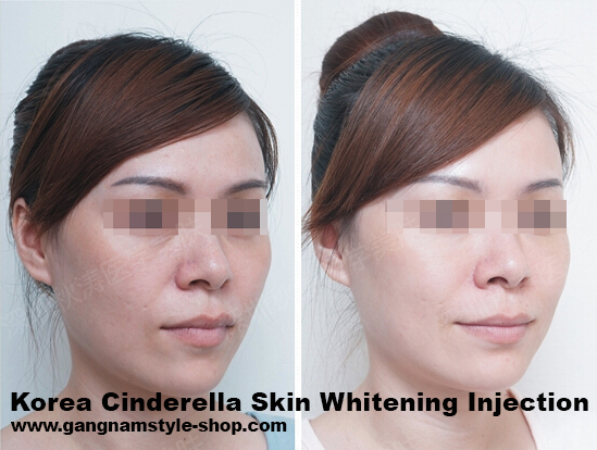 cinderella skin whitening injection