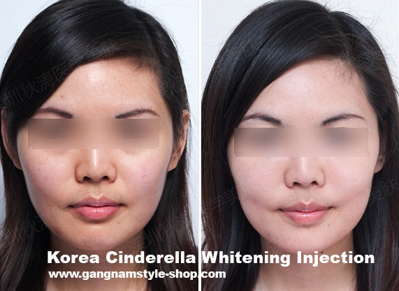 cinderella whitening injection before after